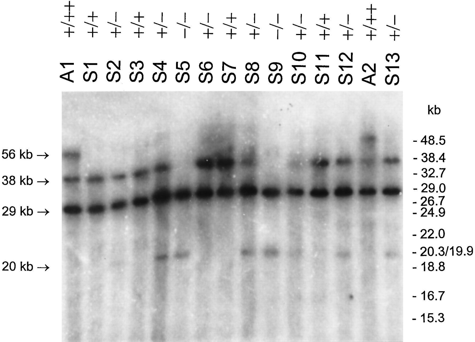 Characterization Of A Human GlutathioneS Transferase Cluster