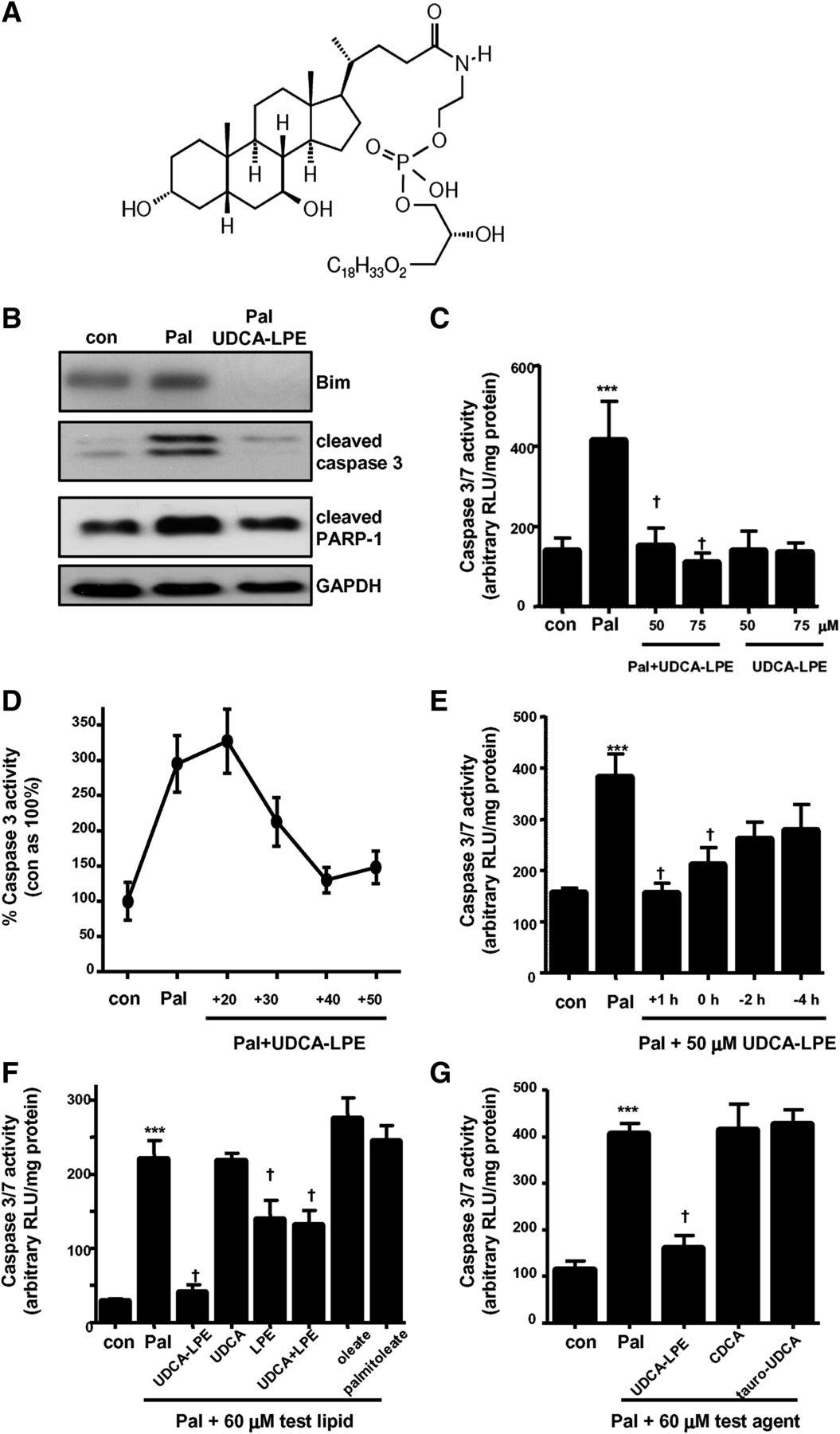 Ursodeoxycholyl Lysophosphatidylethanolamide Inhibits Lipoapoptosis