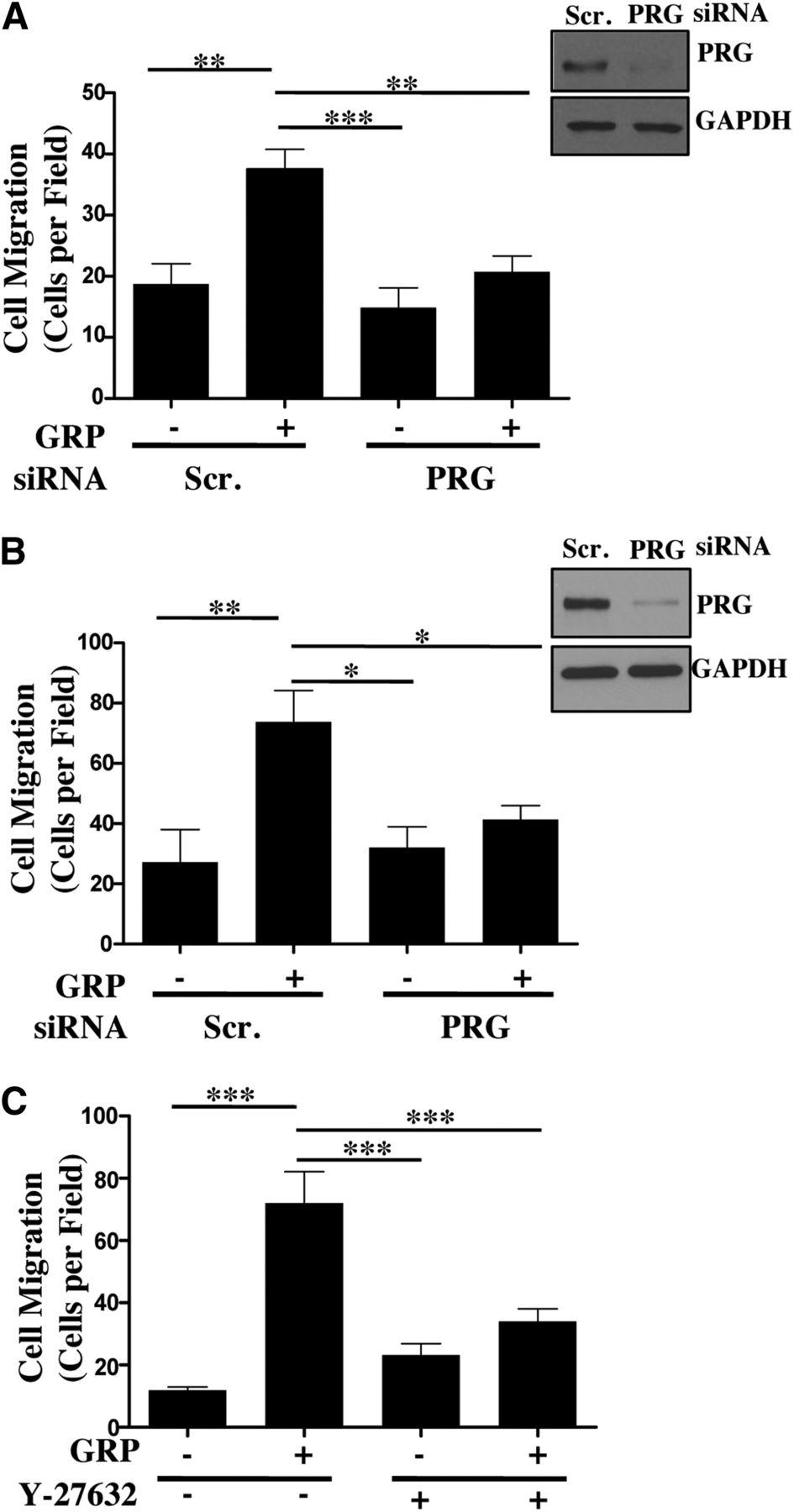 Gα13/PDZ-RhoGEF/RhoA Signaling Is Essential for Gastrin
