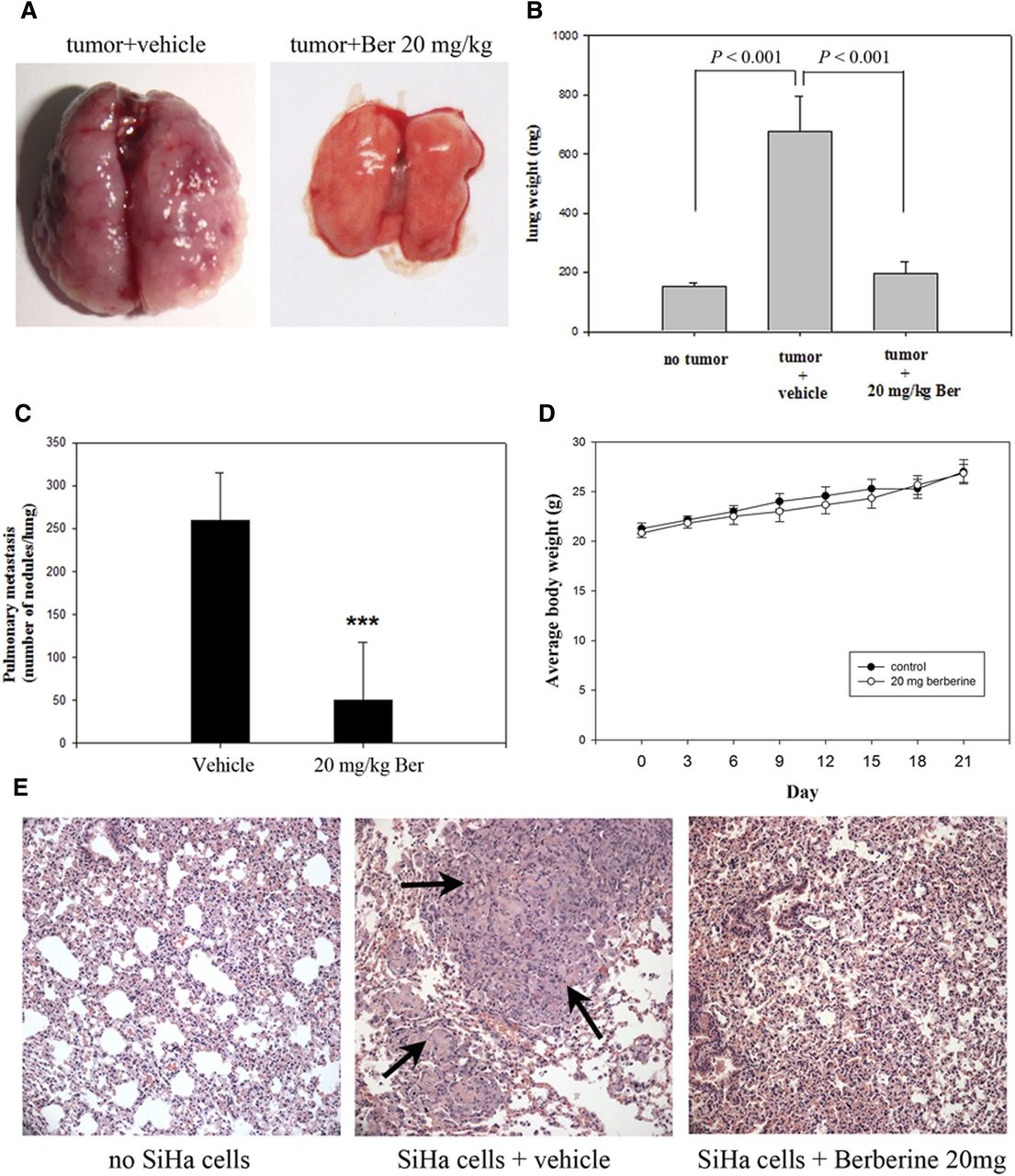 Metastatic lung tumor nodules induced by TL-1 and SiHa