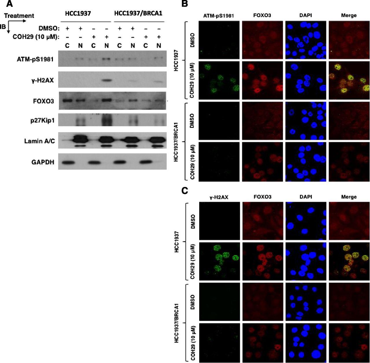 The Novel Ribonucleotide Reductase Inhibitor COH29 Inhibits DNA