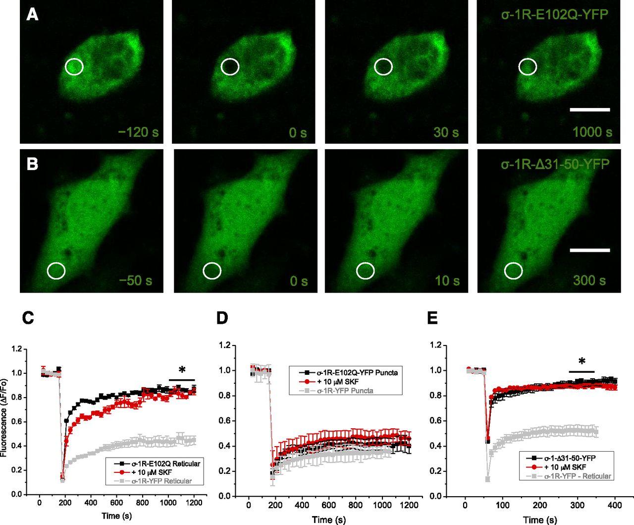 Aberrant Subcellular Dynamics of Sigma-1 Receptor Mutants Underlying
